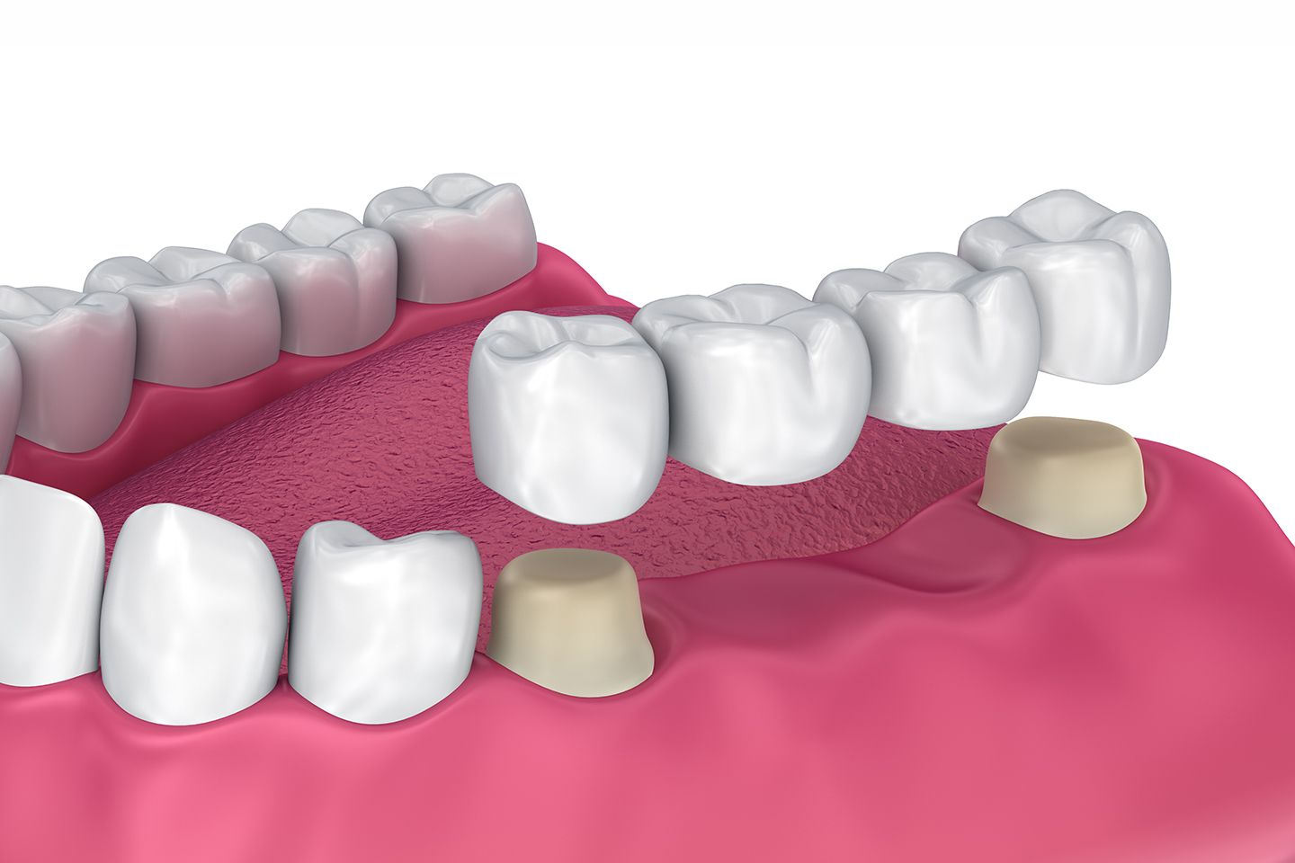 How Dental Bridges Improve Your Overall Health and Well-Being